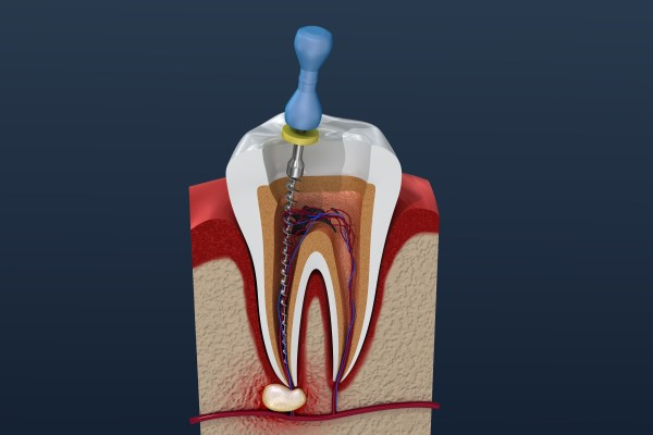 Tips To Avoid Root Canal Therapy From An Endodontist